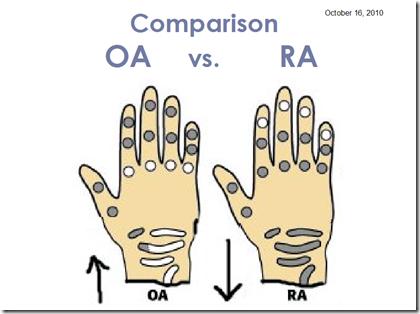Osteoarthritis Vs Rheumatoid Arthritis Hands – images free download